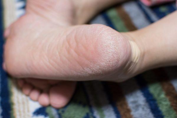足 の 皮 が むける 水虫